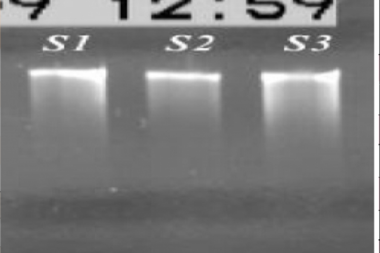 Quality assessment of blood DNA extract using electrophoresis