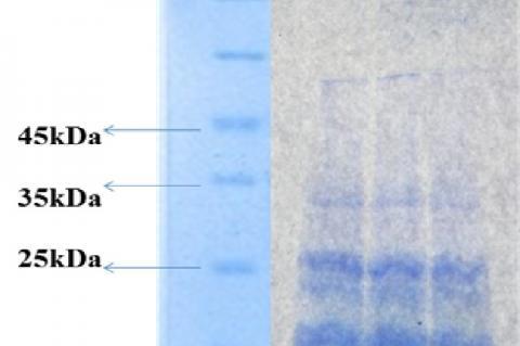 Electrophoretic profile of pumpkin seed protein