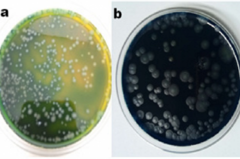 Carr agar medium (a) After acetic acid production (b) After over oxidation