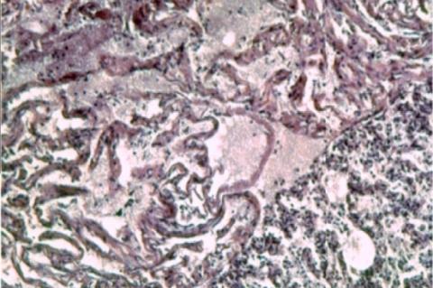 Newborn rat renal tubular system. HE × 200