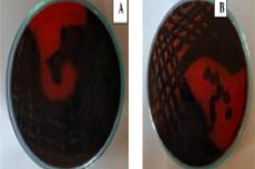 Colonies of isolated strains producing exopolysaccharide on Congo red agar with 50 g/l of sucrose. A - black or almost black colonies (positive), B - black or almost black colonies (positive)