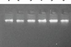 Figure 2: P8 Genomic DNA Loaded on 1% Agarose Gel